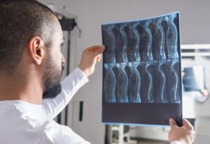 Radiologist analyzing x-ray